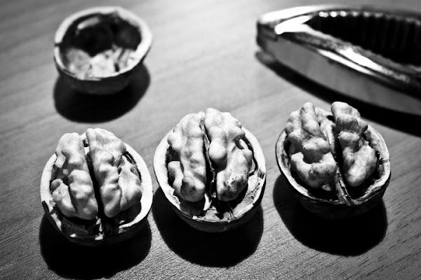 Cervelli in miniatura di Nemeth