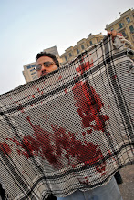 Photo: Evidence of the horrific attack unleashed in Tahrir Square in the early morning hours while the majority of Egyptians were asleep and the mainstream media nowhere to be found.