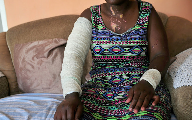 A 27-year-old woman is nursing burn wounds after she was splashed with acid at a party in Diepkloof, Soweto.