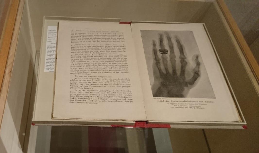 レントゲン『新種の輻射線について』ヴュルツブルク、1895-96年