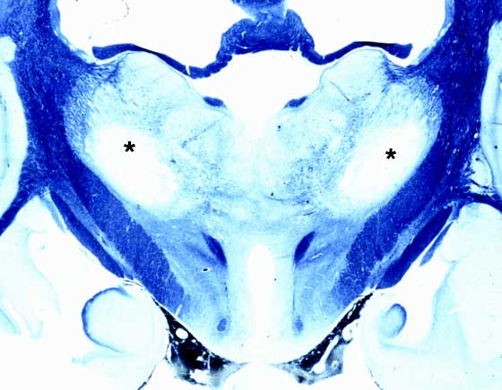 Bilaterally symmetrical thalamic cavitation