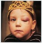 jongetje met dichtgeslagen oog en kroon op het hoofd