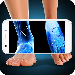 Xray Fracture Foot Prank for PC and MAC