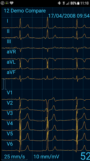 Cardiax Mobile ECG 1.36 screenshots 1