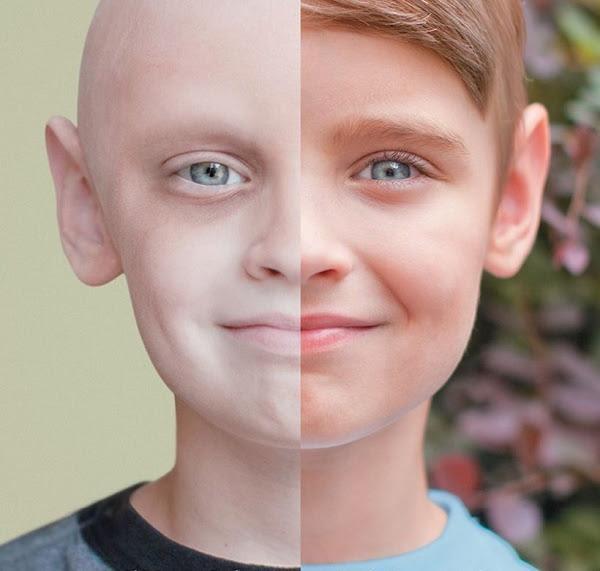 bệnh ung thư máu