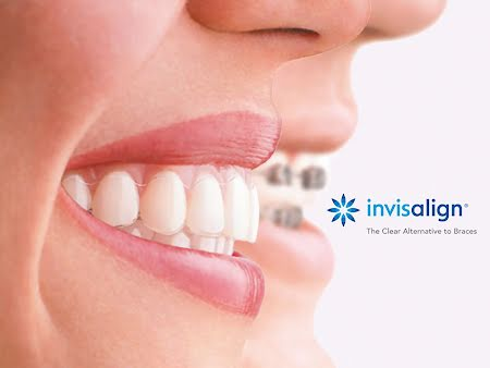 Orthodontie