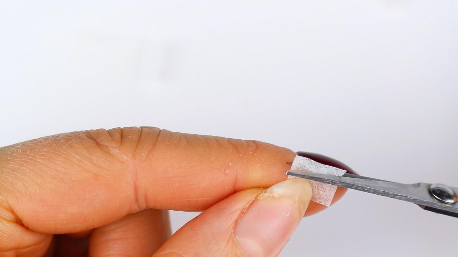 Eingerissener Fingernagel - Teebeutel zurechtschneiden
