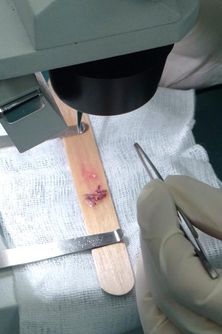 https://www.transplantecapilar.pt/uploads/fotos_artigos/images/microsc.png