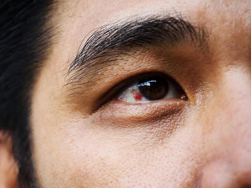 Nổi đốm đỏ trong tròng trắng mắt nói lên điều gì về sức khỏe của bạn