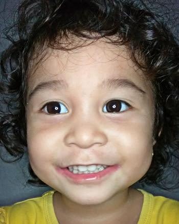 Kesan efek ring pada anak mata