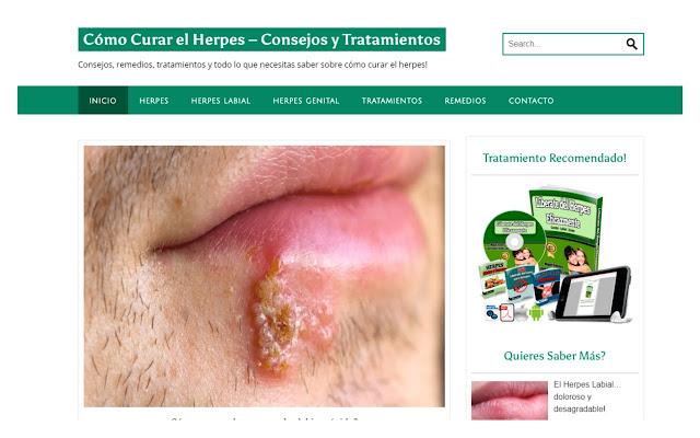 Cómo Curar El Herpes