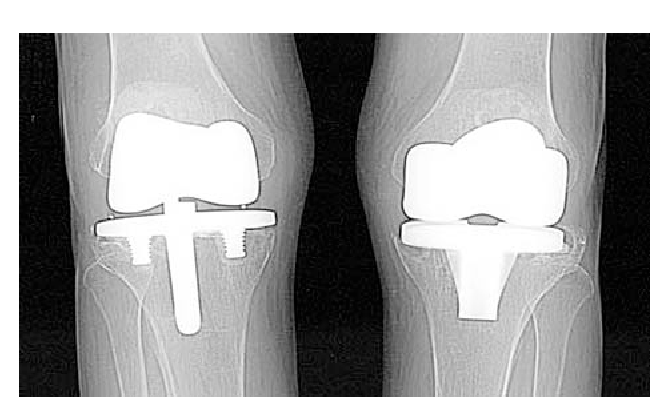 Image result for fixed bearing knee replacements