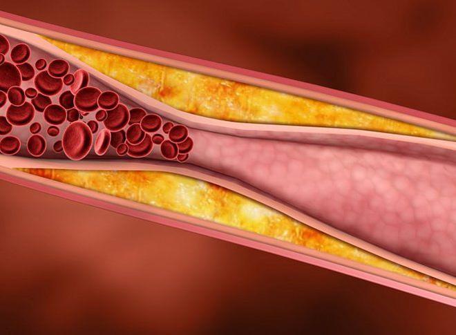 Hình ảnh mỡ trong mạch máu