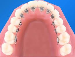 Niềng răng mặt lưỡi có tốt không, có nên chọn mắc cài này?