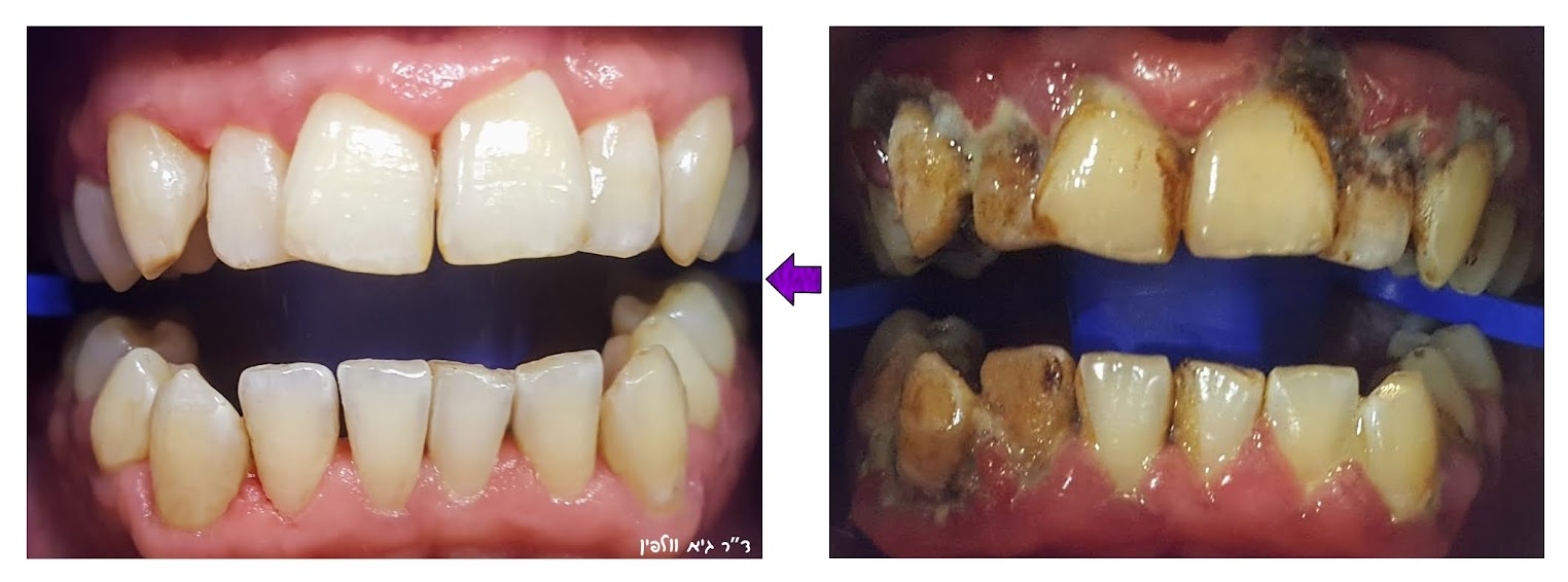 """שנים של הזנחה בגלל דנטופוביה הביאה לדלקות חניכיים קשות, חורים בשיניים וריח רע מההפה, לאחר טיפולים בחרדה בשיטות שונות כולל גז צחוק ביהייביוריזם וסוגסטיה, הגענו לתוצאות מדהימות. ד""""ר גיא וולפין, רפואת שיניים ואסתטיקה דנטלית, פתח תקווה"""