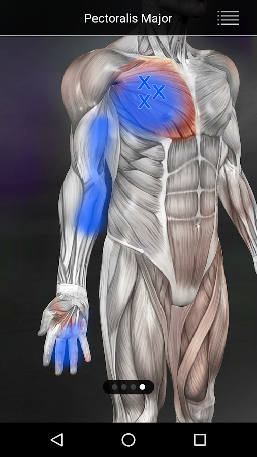 Muscle Trigger Point Anatomy- screenshot