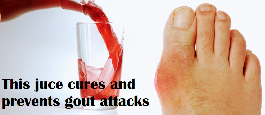 This yummy fruit juice removes gout in 24 hours
