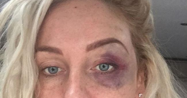Josie Gibson claims she was beaten by a boxer
