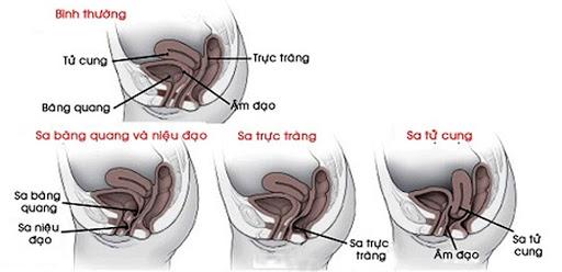 tai-sao-phu-nu-can-phai-kham-san-chau-sau-sinh