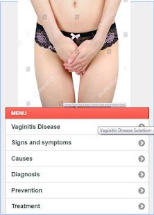Vaginitis Problem Disease - náhled