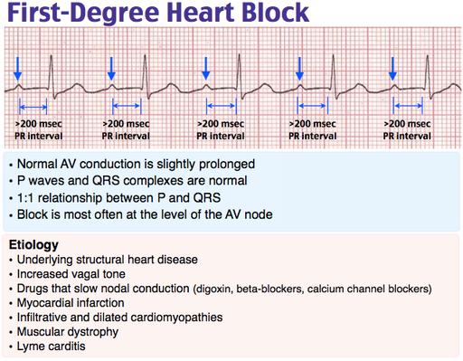 First-degree heart block