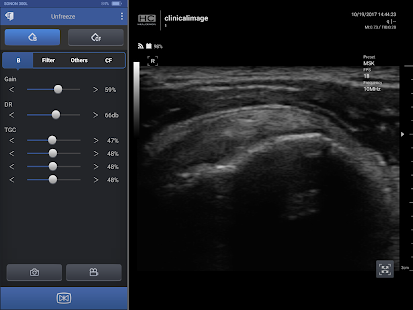 Healcerion Ultrasound App - náhled