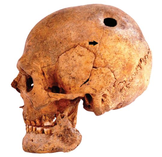 File:Trepanated skull of a woman-P4140363-black.jpg