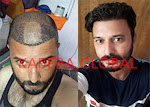 Hair Transplant Clinic in Delhi and clients Results