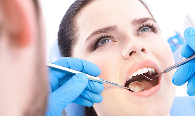 Mặt LỢI và HẠI của việc lấy cao răng - Những SỰ THẬT nên biết 1