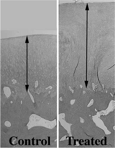 Photomicrographs (same level of magnification) of full-thickness defects on the medial femoral condyle