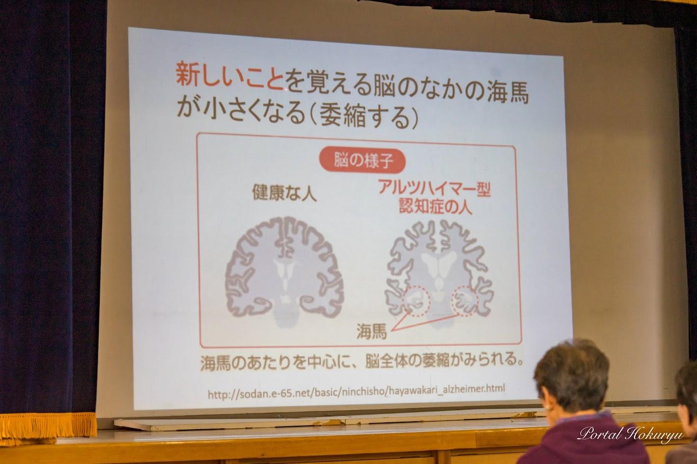 新しいことを覚える脳のなかの海馬が小さくなる(萎縮する)