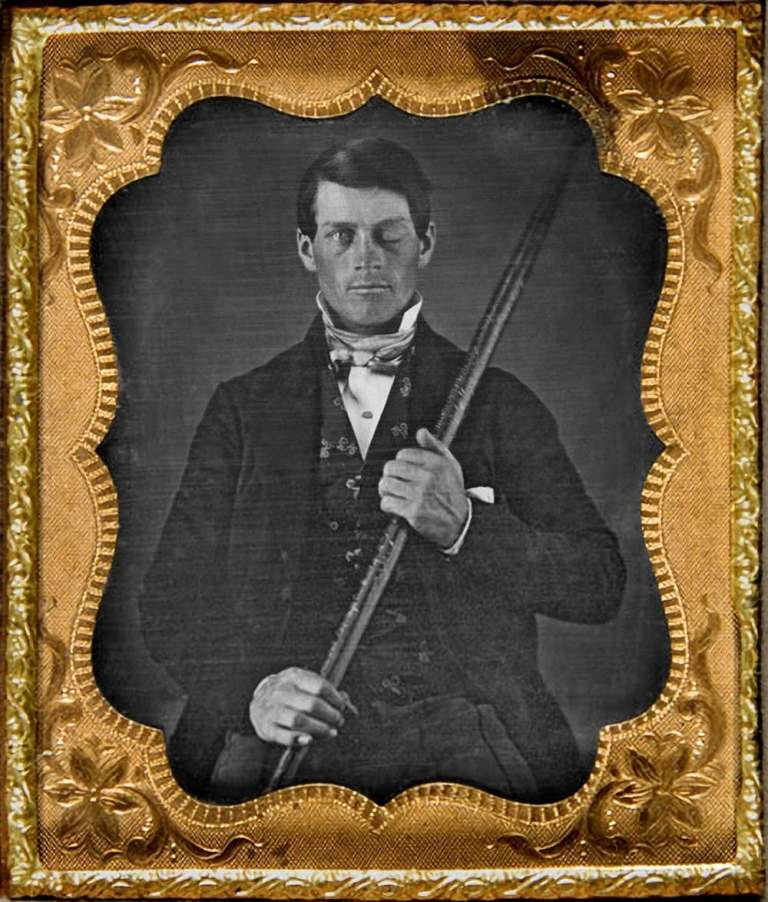 Phineas Gage, after injury.
