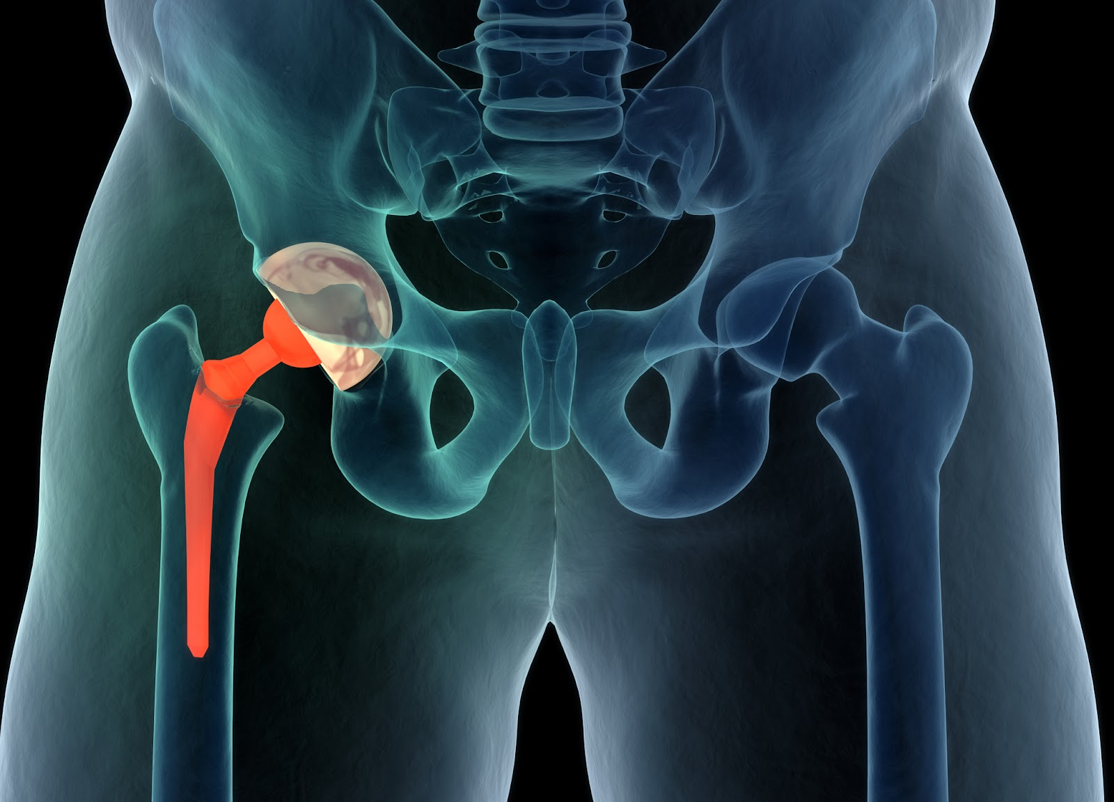 Joint Replacement Surgery- Risk Of Delaying