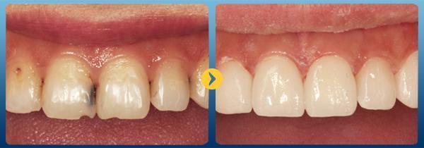 Trám răng cửa bị mẻ bằng vật liệu nào tốt và bền nhất hiện nay? 1