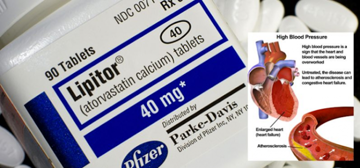 Study: Statins Do More Harm Than Good and Increase Memory Loss, Diabetes and Cancer Risk
