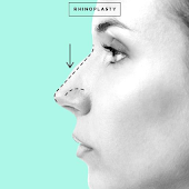 Rhinoplasty and Nose Job
