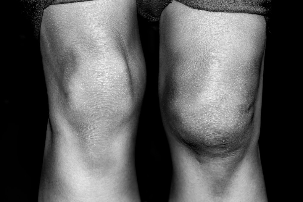 A swollen knee from an ACL injury