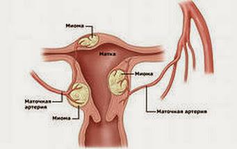 Излечение миомы