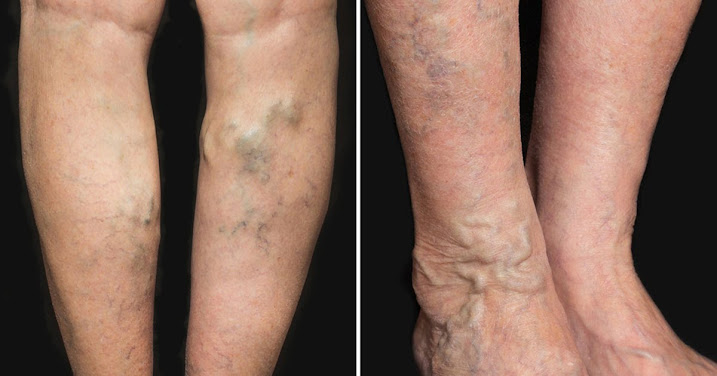 3 Things You Can Do at Home to Help Eliminate Varicose Veins