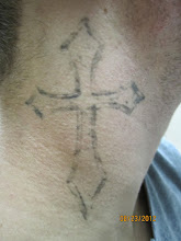 Photo: Pre 6th Laser Tattoo Removal Treatment at Las Vegas Dermatology
