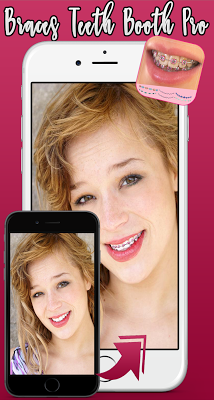 Braces Teeth Booth Pro 2017 - screenshot