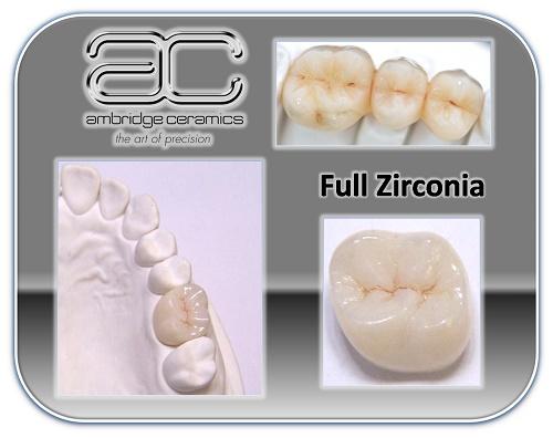 Sự khác nhau giữa răng sứ cercon và zirconia - Nha khoa Bally 1