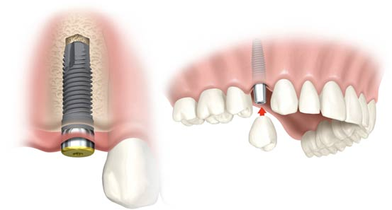 Quy trình trồng răng Implant mất bao lâu - Nha khoa Quốc Tế Bally 1