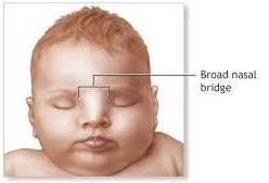 Fetal Hydantoin Syndrome 8 - Daily Medicos