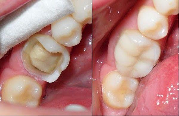 Răng sứ Cercon và Zirconia có gì khác nhau   Nha khoa Bally 1