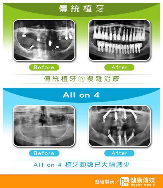 完美植牙醫學中心—何彥德醫師提供