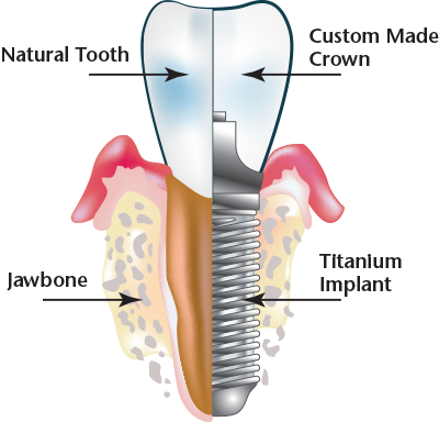 dental-implant.png