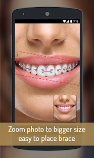Download Braces your Teeth Photo Maker Free