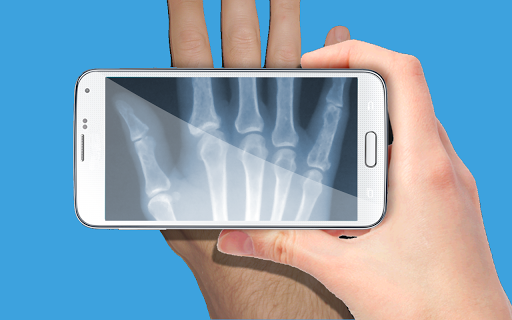 無料休闲AppのX線スキャナいたずらであなたの手をスキャンし、fun.x線ス|記事Game